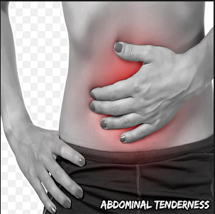 Abdominal Tenderness