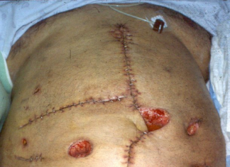 Abdominal abscess