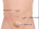 Abdominal lump