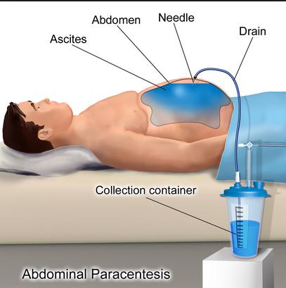 Abdominal tap