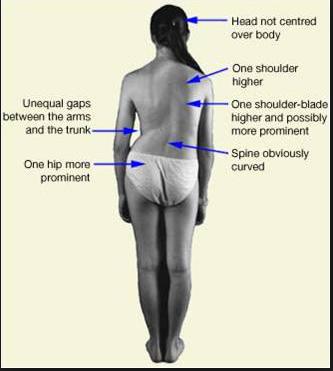 Abnormal posture