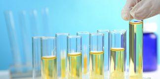 Abnormal urine color