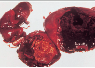 Abortion with septic shock