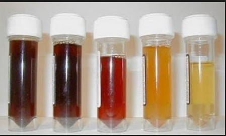 Discolored urine