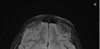 Acute cerebellar ataxia