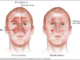 Acute frontal sinusitis