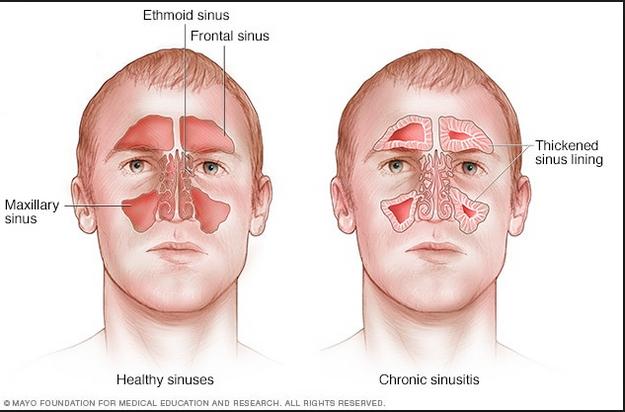 Acute frontal sinusitis