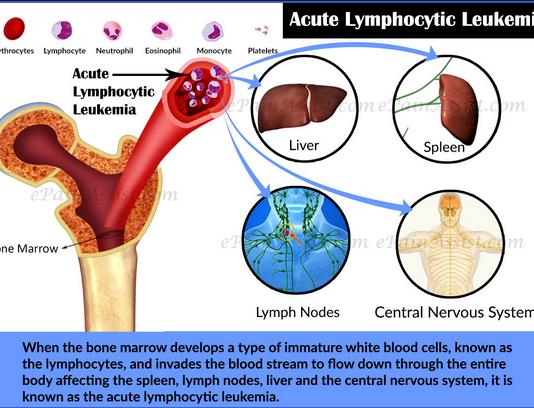 Acute lymphocytic leukemia