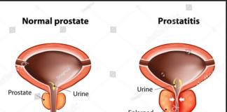 Acute prostatitis