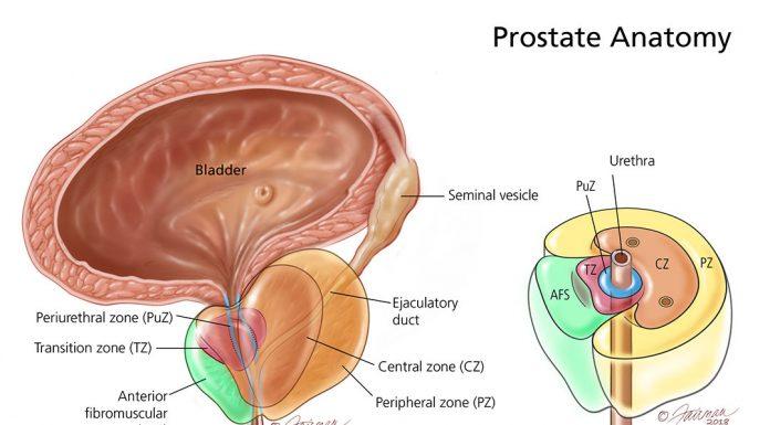 Acute prostatitis pictorial representation