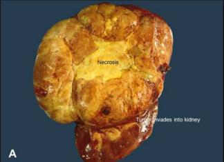 Acute adrenocortical carcinoma