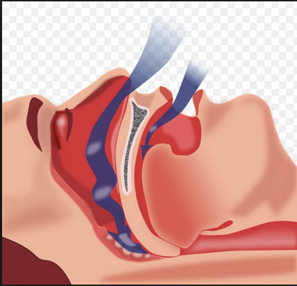 Acute upper airway obstruction