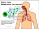 Acute upper respiratory infection