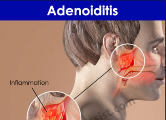 Adenoiditis