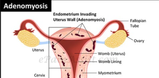 Adenomyosis