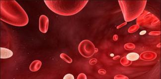 Agranulocytosis
