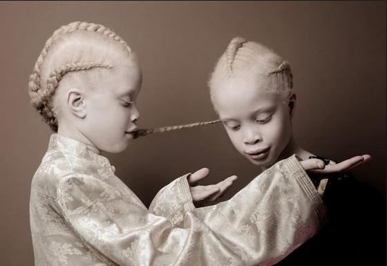 Albinism