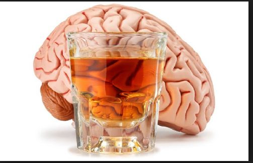 Alcohol-related neurologic disease