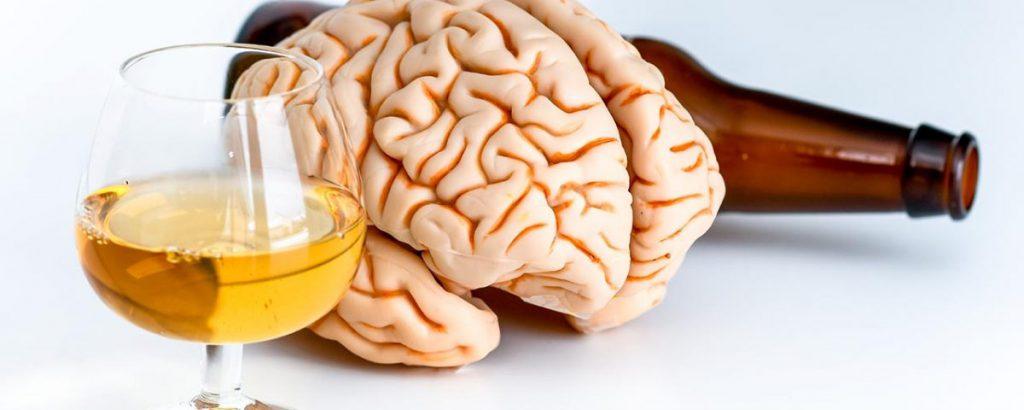 Alcohol-Related Neurologic Disease