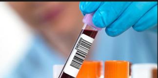 ALP Bone isoenzyme test