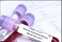 Alanine aminotransferase test