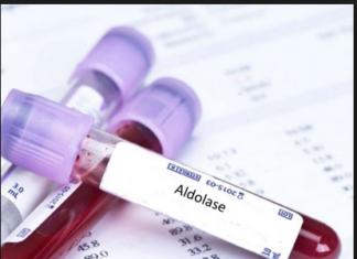 Aldolase test