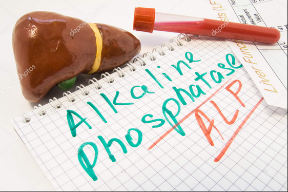 Alkaline phosphatase level test