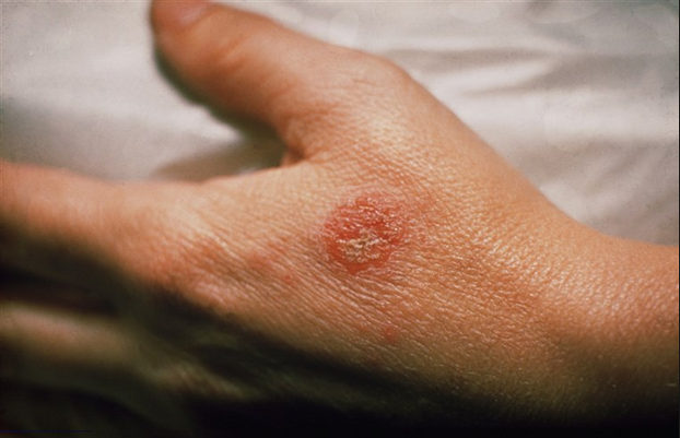 Allergic Eczema