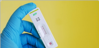 Alpha-fetoprotein test