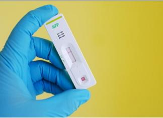 Alpha-fetoprotein test