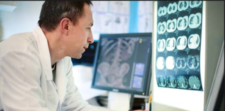 Alzheimers disease doctors