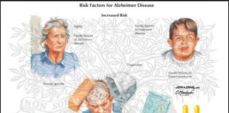 Alzheimers disease risk factors