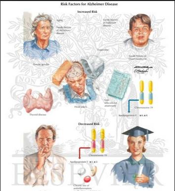 Alzheimers disease risk factors