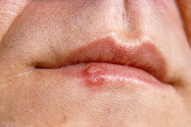 Cold sores on the lips