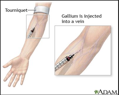 Gallium scan