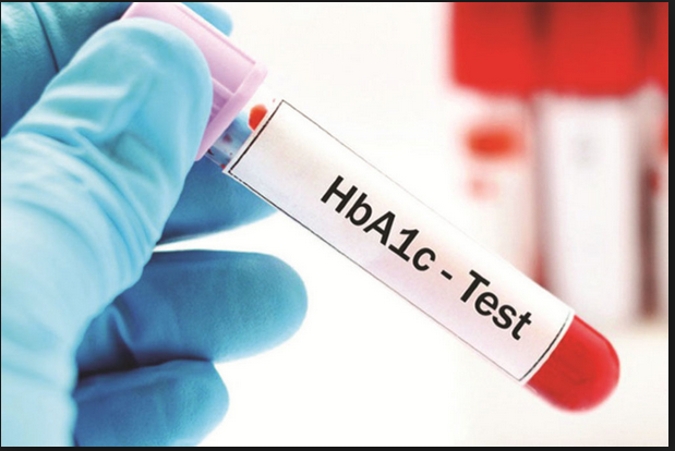 Hemoglobin A1C Test