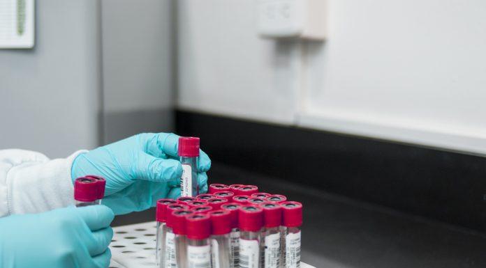alkaline phosphatase level test