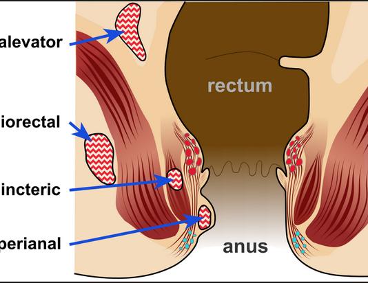 Anal abscess