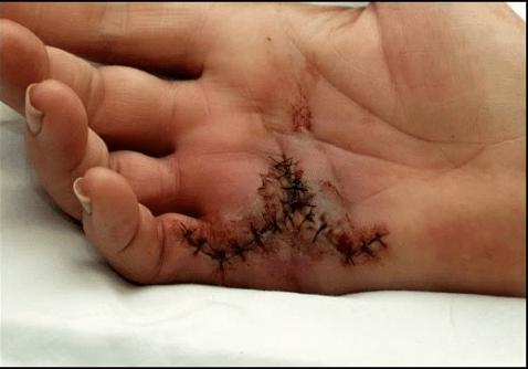 Animal bite infections