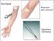 Anti-glomerular basement membrane test