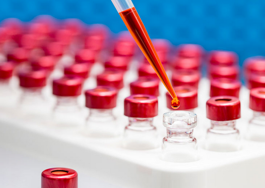 Antibody titer test