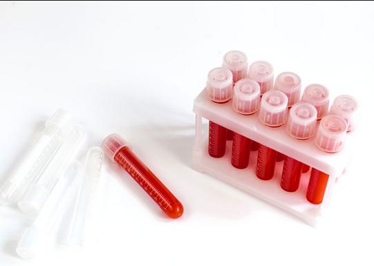 Antimitochondrial antibody test
