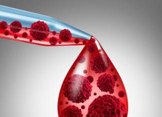 Antithyroid microsomal antibody test