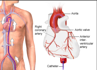 Aortic angiography