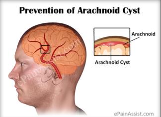 Arachnoid cyst