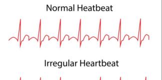 Symptoms of arrhythmia