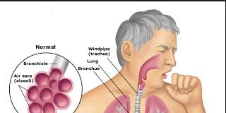 Aspiration pneumonia