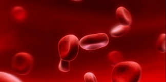 Autoimmune hemolytic anemia