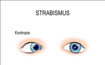 crossed eyes strabismus