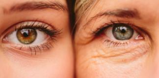 droopy eyelids ptosis